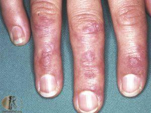 Gottron's Papules of dermatomyositis