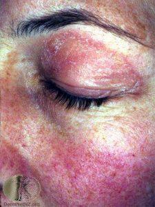 Heliotrope Rash of Dermatomyositis