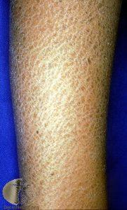 Ichthysosis - Dry Skin
