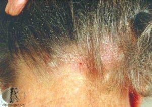 Seborrheic Dermatitis in the Scalp