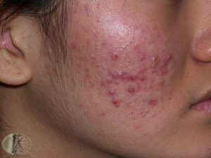 Acne on the cheek