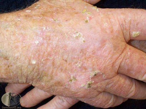 Actinic keratoses on the hands