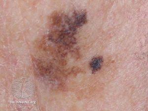 Melanoma Treatment & Information Colorado Springs