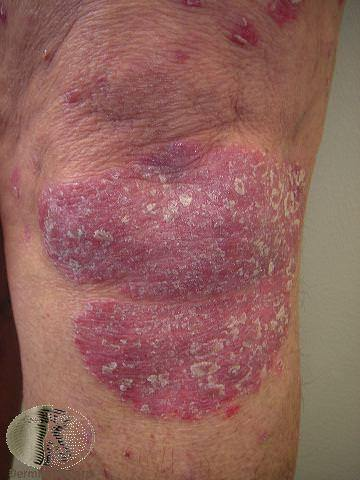 Plaque Psoriasis on the Knee