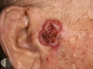 Squamous Cell Carcinoma on the Face - Skin Cancer