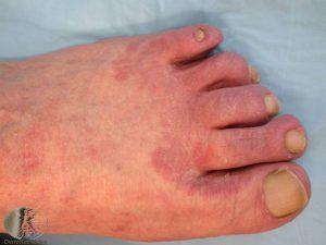 Tinea Pedis - Athlete's Foot