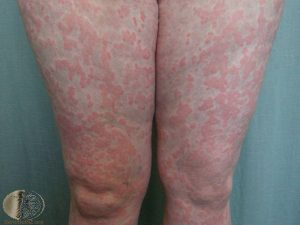 Hives on the Legs