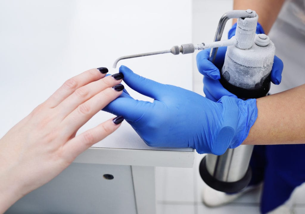 Wart Removal and Treatment Colorado Springs & Monument, CO